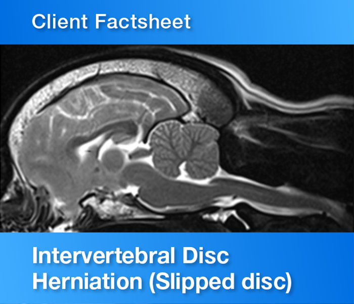 Client Factsheet Intervertebral disc herniation